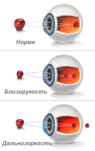 Где находятся глаза у человека